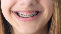 Beautiful smiling girl with braces for teeth . Stock Footage
