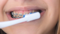 Beautiful smiling girl with retainer for teeth brushing teeth . Stock Footage