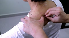 Acupuncturist treating patient by pricking needle into shoulder of patient Stock Footage