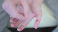 Guy gloves the wound on his finger plaster - stock footage