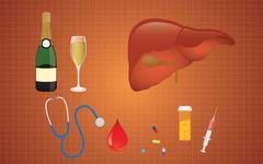 cirrhosis illustration with liver medicine alcohol as the real cause - stock illustration