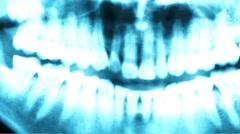 Closeup Glitchy Blue X-Ray Teeth Stock Footage
