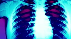Closeup Glitchy Ultraviolet X-Ray Chest Stock Footage