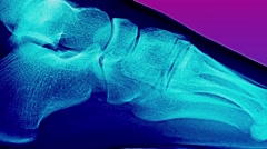 Closeup Glitchy Ultraviolet X-Ray Foot Stock Footage