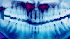 Closeup Glitchy Ultraviolet X-Ray Teeth Stock Footage