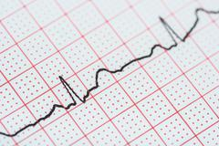 Sinus Heart Rhythm On Electrocardiogram Record Paper Showing Normal Heart - stock photo