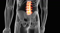 Medical 3d animation of the painful lumbar spine Stock Footage