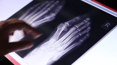 Doctor examines human feet bones fluorography scan on touch screen computer Stock Footage