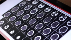 Doctor examines human brain MRI scan on touch screen computer Stock Footage