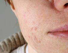 Skin with the acne problems Stock Photos