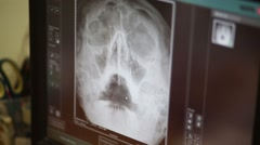 X-ray picture of a human skull on a monitor in clinic Stock Footage