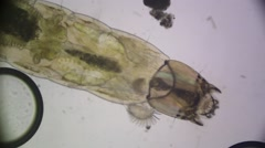 Mosquito Larvae Stock Footage