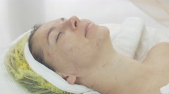 Woman face with closed eyes in beauty saloon with problem aged skin. Acne Stock Footage