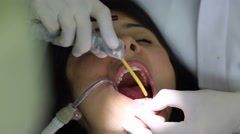 Dentist close up. Female doctor examining patient Stock Footage