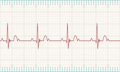 Stock Illustration of Heartbeat rate