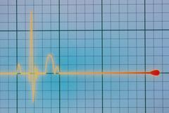 ECG / EKG monitor Kuvituskuvat