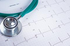 Stethoscope on an electrocardiogram (ECG) chart background - stock photo
