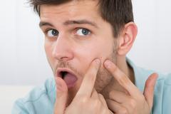 Shocked Young Man Looking At Pimple On Forehead Stock Photos