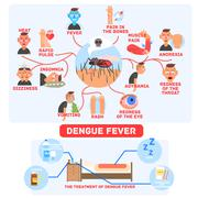Dengue Fever Infographics Stock Illustration