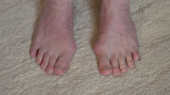 Male feet with obvious bunions  - stock footage