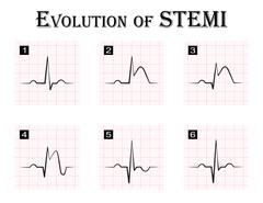 ECG of evolution ( step by step ) of STEMI ( ST elevation myocardial infarcti Stock Illustration