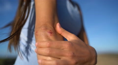 Skin Scrapes on Sporty Woman With Elbow Wound - stock footage