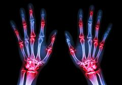Film x-ray both human's hands and arthritis at multiple joint (Gout,Rheumatoid) Stock Photos