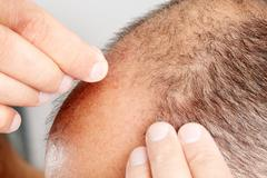 Hair loss. Stock Photos