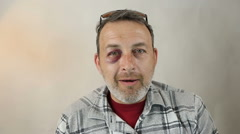 Middle-aged Caucasian male Emotional Portrait with a Real Bruise. Black Eye. Stock Footage