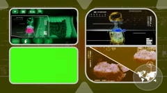 Stock Video Footage of Digestion - Analysis in software - examination - background yellow 02