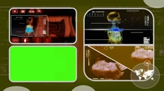 Stock Video Footage of Digestion - Analysis in software - examination - background yellow 03