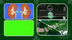 Kidneys - Analysis in software - examination - background green 02 - stock footage