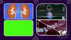 Kidneys - Analysis in software - examination - background purple 02 - stock footage