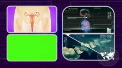 Vagina - Analysis in software - examination - background purple 01 Stock Footage
