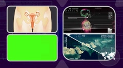 Vagina - Analysis in software - examination - background purple 03 Stock Footage