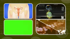 Vagina - Analysis in software - examination - background yellow 02 Stock Footage