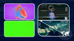 Vector Heart - Analysis in software - examination - background blue 01 - stock footage
