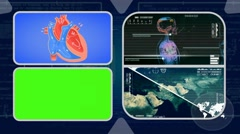 Vector Heart - Analysis in software - examination - background blue 02 Stock Footage