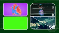 Vector Heart - Analysis in software - examination - background green 01 Stock Footage