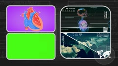 Vector Heart - Analysis in software - examination - background grey 01 - stock footage