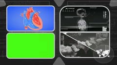 Vector Heart - Analysis in software - examination - background grey 02 Stock Footage