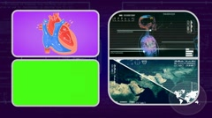 Vector Heart - Analysis in software - examination - background purple 01 Stock Footage