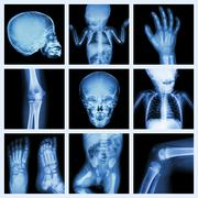 Collection x-ray part of child body (Version 2) - stock photo