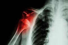 X-ray anterior shoulder dislocation Stock Photos