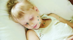 Sick child lying on the pillow. Blonde girl 4-6 years, is ill with chickenpox Stock Footage