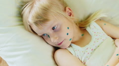 Girl 4-5 years is ill with chickenpox, it is sad on the pillow Stock Footage
