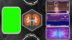 Kidneys - Three Monitor Scanning Info - Green Screen - purple 03 Stock Footage