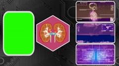 Kidneys - Three Monitor Scanning Info - Green Screen - purple 01 Stock Footage