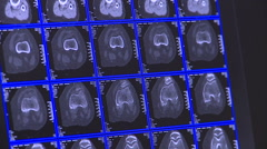 TAC Brain scan Stock Footage