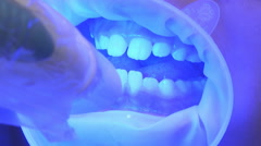 UV Whitening Teeth Stock Footage